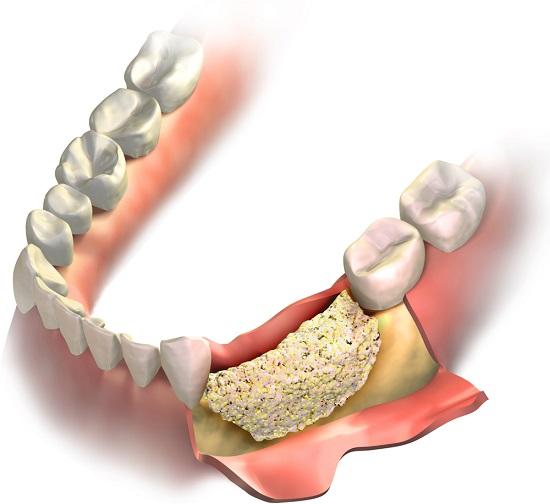 implant dentar, aditie de os