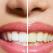 Medicul specialist ne dezvaluie cei 6 pasi pentru a pastra rezultatele albirii dintilor
