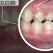 Malocluzia dentară, o afecțiune ce nu trebuie subestimată
