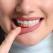 Parodontoza - cauze, simptome și cum o putem preveni