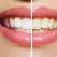 Albire dentara sau fatete - afla ce ti se potriveste mai bine