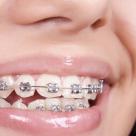 Primele zile cu aparat dentar - cum ne obisnuim cu purtarea lui
