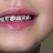 Durerea de dinti la copii – cauze si tratament