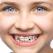 Dintii inghesuiti la copii - cauze si tratament