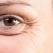 5 sfaturi fundamentale pentru a preveni apariţia ridurilor în jurul ochilor