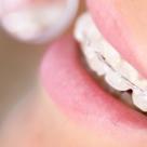 Particularitatile tratamentului ortodontic la adult