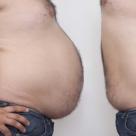 Obezitatea afecteaza viata sexuala a barbatilor! Doamnelor, aflati de ce!