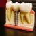 Implantul dentar: întrebări și răspunsuri pe care ai vrut să le afli dintotdeauna