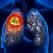 Cancerul pulmonar: cât de vinovat este tutunul pentru diagnostic, de ce îl depistăm târziu, ce tratamente revoluționare au uimit chiar și medicii