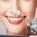 Recapata-ti albul natural al dintilor
