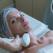 Ai cicatrici cauzate de acnee? Ce tratamente moderne te pot ajuta să scapi de ele