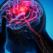 Când e cazul să mergi la urgență cu o durere de cap