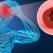 Ceea ce ne protejează inima, ne protejează și creierul. Accidentul vascular cerebral - Cum îl prevenim și cum îl tratăm