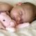 Suptul degetului la bebelusi