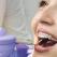 Explicațiile medicului ortodont: Este indicat să aplicăm aparatul dentar în perioada vacanței?