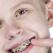 La ce varsta este indicat aparatul dentar la copii?