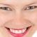 Avantajele si dezavantajele fatetelor dentare explicate de specialistul ortodont