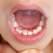 """Ce sunt """"dinții de rechin""""? Când, unde și de ce apar?"""