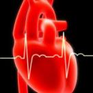 Programul de tratament invaziv al infarctului miocardic acut