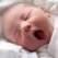Icterul fiziologic al nou-nascutului