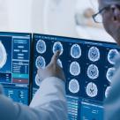 Radioterapia performantă - tratamentul oncologic care poate învinge cancerul