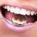 Expertul ne invata: Cum sa alegem aparatul dentar potrivit noua