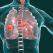 Campanie pentru depistarea precoce a cancerului bronhopulmonar: 50 de bronhoscopii gratuite efectuate lunar