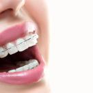 De ce sa porti aparat dentar chiar și când ești la vârsta adulta?