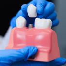 Implantul dentar: Pași de urmat pentru o procedură reușită