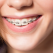 Ce facem daca purtam aparat dentar in perioada de izolare la domiciliu?