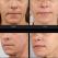 Congresului National de Dermatologie aduce un nou produs pentru frumusetea pielii