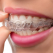Aparatul dentar mobil - cum se poarta si cum il ingrijim